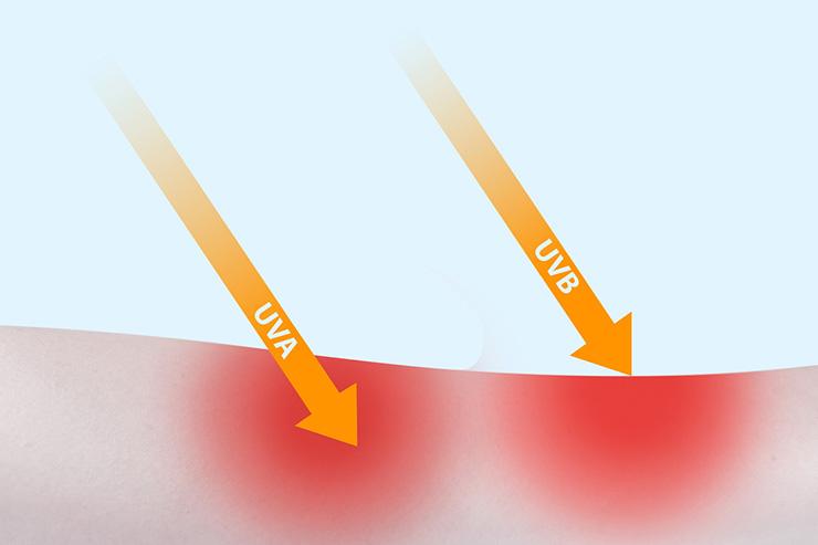 紫外線は日焼けだけでなく健康に影響を与えることも